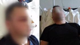 Brutální útok na hasiče Adriána: Mladík (17) mu o Silvestru rozmlátil obličej!