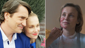 Hvězda filmu Můj příběh Svátková při natáčení trpěla: Popálený obličej a fleky!