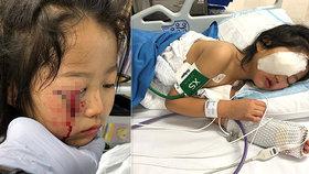 Holčička (6) málem oslepla v supermarketu: Při děsivé nehodě přišla o oční víčko!