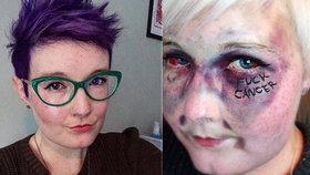 Do pr*ele s rakovinou! Zemřela statečná bloggerka (†28), která veřejně bojovala se zhoubnou nemocí