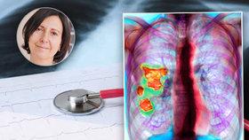 Lékaři našli pacienty s vzácnou plicní nemocí: Dech připomíná suchý zip, plíce tuhnou!