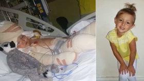 """""""Já umírám, já umírám!"""" Holčička (5) na sebe zvrhla olej o teplotě 200 °C, matka popsala boj o život"""