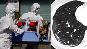 """Rentgen jako rychlá cesta potvrzení nemoci? Koronavirus odhalí """"mléčné skvrny"""", tvrdí Američané"""