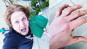 Tomáš Klus ukázal zkrvavenou ruku: Za mužný čin si vysloužil obdiv!