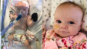 Malé miminko se nakazilo koronavirem: Na přístrojích bojuje o život!