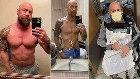 Před a po: Koronavirus změnil svalovce k nepoznání! Zhubl 23 kilo a málem nepřežil