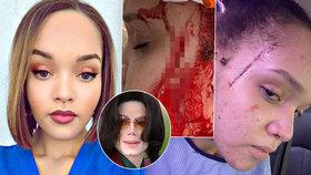 7 ran nožem! Brutálně napadli neteř Michaela Jacksona Yasmine (25)