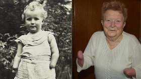 Půlroční Anně matka v záchvatu psychózy uřízla obě ruce! V blázinci pak umřela hladem
