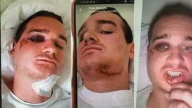 Petra brutálně zbil policista a bojovník MMA! Zlomil mu čelist za to, že dělal hluk