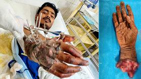 Děsivé záběry! Řidič přišel při autonehodě o ruku: Přišili mu ji zpět!