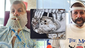 27 let nebyl u zubaře: Pak mu museli odoperovat skoro celou čelist!