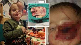Chlapci (5) roztrhali dva rotvajleři tvář. Monstrum, pokřikují na něj děti
