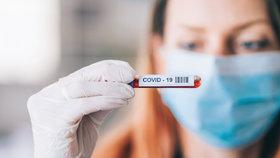 Jak probíhá testování na koronavirus? Poradíme vám, zda se objednat předem a kdy se dozvíte výsledky