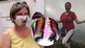 Lékařka Areta (54) nekouřila, přesto má rakovinu plic: Uvědomila jsem si blízkost smrti