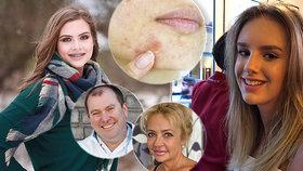 Dívky (†15) spáchaly sebevraždu, rodiče viní lék proti akné! Je i v Česku! Nahlášen byl pokus o zabití