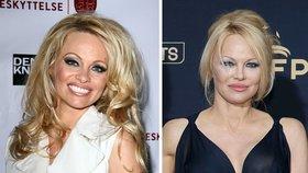 Tak tohle se nepovedlo! Které celebrity si nechaly odstranit tetování?