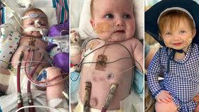 Od narození bojuje o život: Holčička (1) dostala nové srdce, ale vymění jí ho ještě dvakrát!