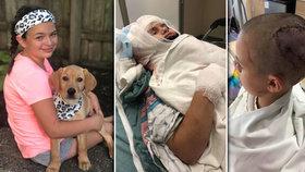 Holčičku skalpoval pitbul: Bolestí a dalšími následky trpí dodnes