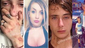 Neuvěřitelné proměny: Bývalí feťáci zveřejňují fotky po vyléčení ze závislosti