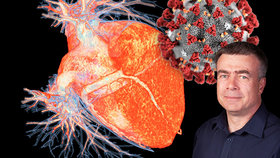 Vážný průběh covidu může poškodit srdce, varuje lékař. A zmínil, jaká opatření fungují