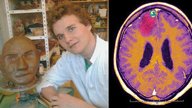 Richard (27) přežil vážnou nehodu: Po klidných letech se jeho chůze i psychika zhoršují