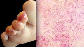 Nádory, žloutenka, covid i AIDS: Tyto nemoci prozradí naše kůže!