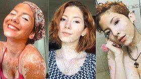 """Modelku kvůli kožní nemoci šikanovali: """"Ptali se mě, jaké to mám tam dole,"""" říká"""