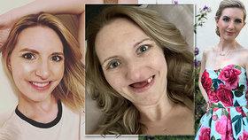 Zubař přehlédl rakovinu: Studentka zůstala téměř bez zubů a čelist dokáže otevřít jen na pár milimetrů!