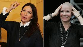 Zpěvačka Anna K. po boji s rakovinou: Trápí ji chemický mozek!