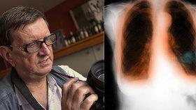 Jiří má plicní nemoc a v roušce se mu špatně dýchá. Lékaři je brání: Stav pacientů nehorší