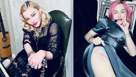 Madonna se pochlubila jizvou! Má za sebou operaci?