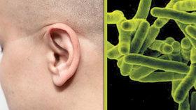 Ušní tuberkulóza: Vzácná infekce s drahou léčbou zanechává těžké zdravotní následky