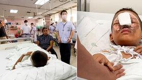 Chlapci (9) explodoval ohňostroj u obličeje: Skončil s vážnými zraněními