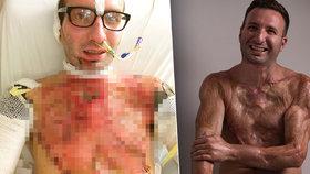 Sportovec dvakrát přežil svou smrt: Podruhé mu 14 tisíc voltů roztavilo kůži na těle