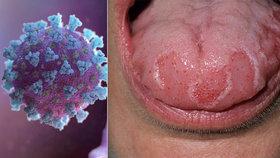 """Lékař odhalil dosud neznámý příznak koronaviru: Takhle vypadá """"covidový jazyk"""""""