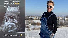Martina Pártlová (41) omylem odtajnila pohlaví miminka! Fotka z ultrazvuku mluví za vše