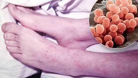 Díky covidu máme méně meningokoka. Počet případů s vážnou infekcí klesl o polovinu