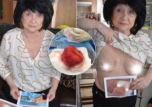 Jarmila (75) měla umělá prsa 40 let, teď je rozežrala bakterie! Boj o život i odškodné!