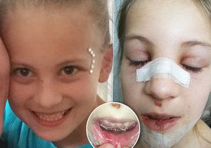 Holčička si po pádu ve škole zlomila nos a utrhla bradu od čelisti: Učitelka nezavolala záchranku.
