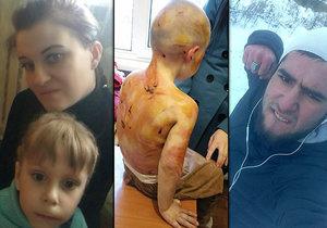 Otčím brutálně zmlátil malou holčičku, její matka nijak nezasáhla.