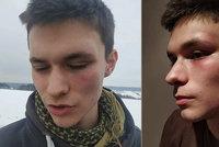 Drsný útok řidiče subaru na mladíka ve Dvoře Králové: Kurýr Honza (19) skončil s otřesem mozku