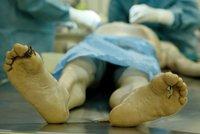 """""""Mrtvý"""" motocyklista ožil na pitevním stole. Těsně předtím, než ho rozřízl patolog!"""