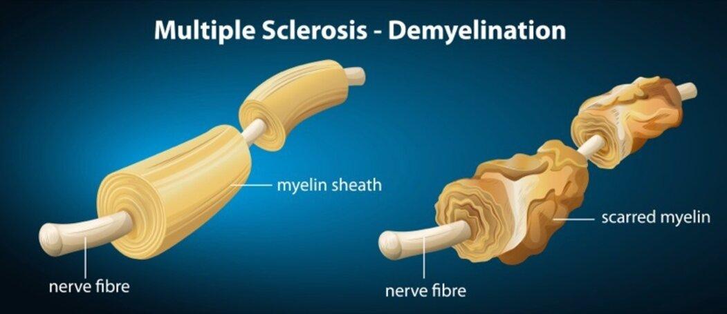 Roztroušená skleróza způsobuje demyelinizaci (rozpad myelinových pochev).