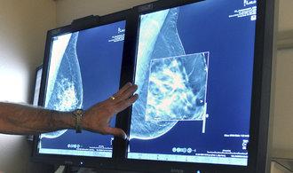 Kladenské mamografy EUC vyšetří více žen