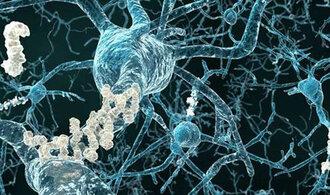 Alzheimerova choroba vůbec nemusí začít v mozku. Je tedy naděje objevit ji dřív, než začne škodit