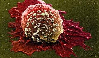 Čeští a američtí vědci našli nový způsob boje s rakovinou, na další výzkum získali skoro miliardu