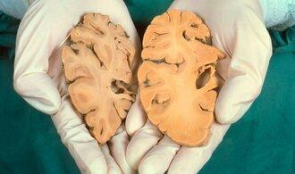 Vědci zjistili, že lze snadněji odhalit alzheimera