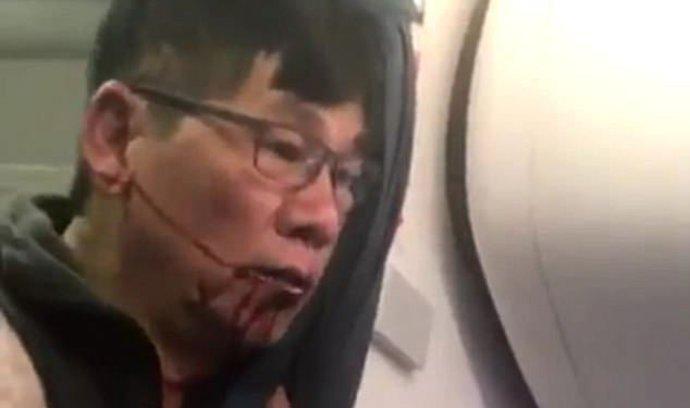 Vyvedli ho násílím z přeplněného letadla. Nyní chce žalovat United Airlines