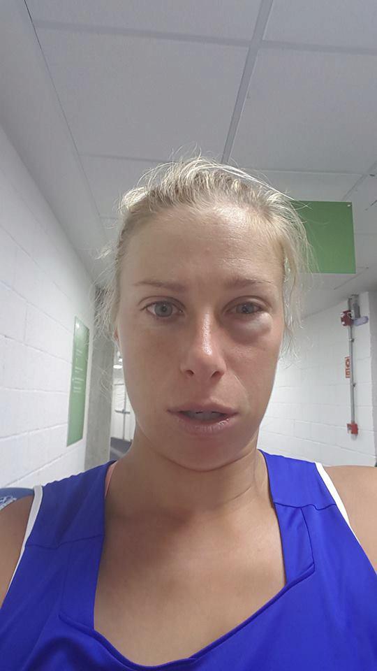 Andrea Hlaváčková s nateklým okem po utkání ve čtyřhře poté, co dostala míčem od Martiny Hingisové