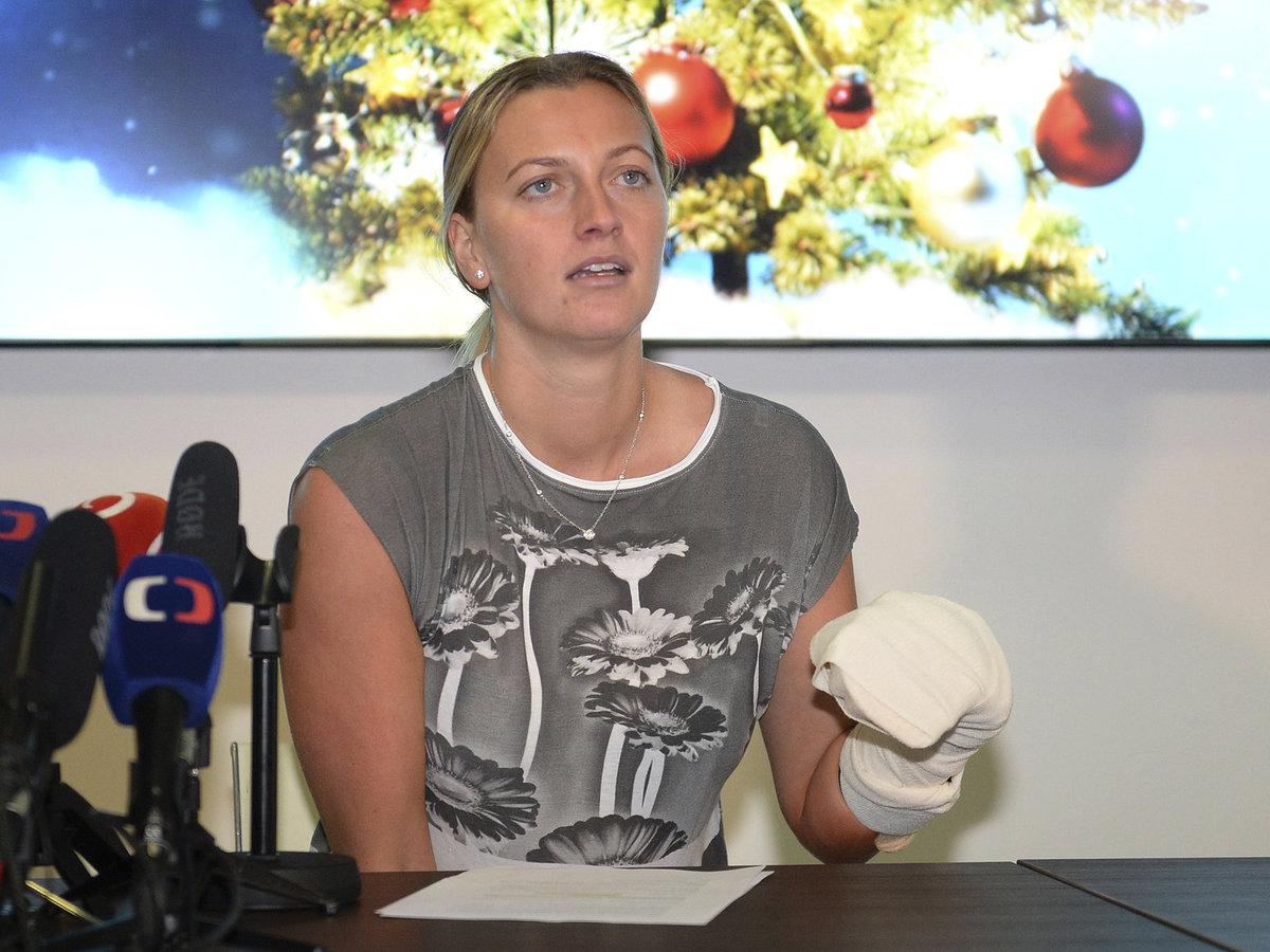 Česká tenistka uvedla, že se rozhodně hodlá vrátit na tenisové kurty